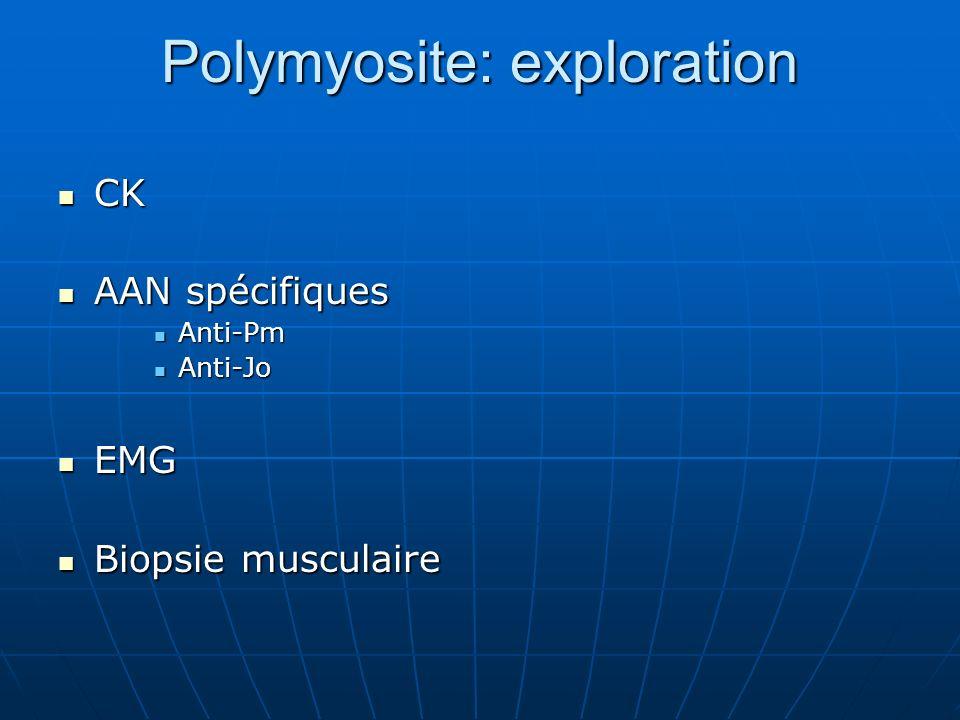 Polymyosite: exploration CK CK AAN spécifiques AAN spécifiques Anti-Pm Anti-Pm Anti-Jo Anti-Jo EMG EMG Biopsie musculaire Biopsie musculaire