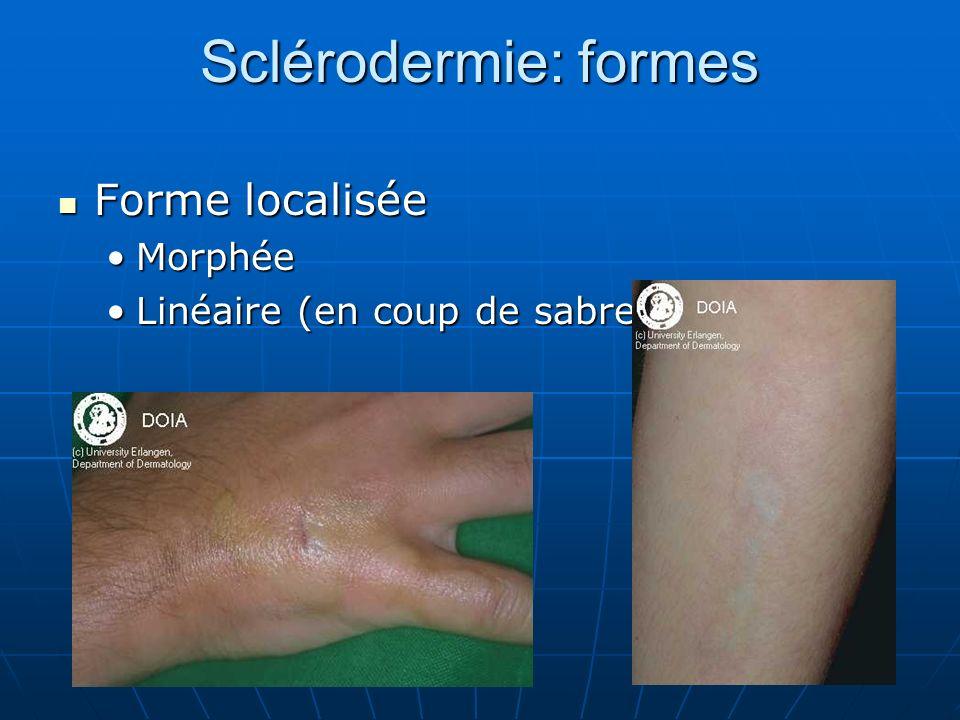 Sclérodermie: formes Forme localisée Forme localisée MorphéeMorphée Linéaire (en coup de sabre)Linéaire (en coup de sabre)