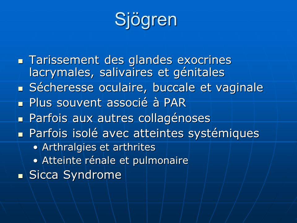 Sjögren Tarissement des glandes exocrines lacrymales, salivaires et génitales Tarissement des glandes exocrines lacrymales, salivaires et génitales Sé