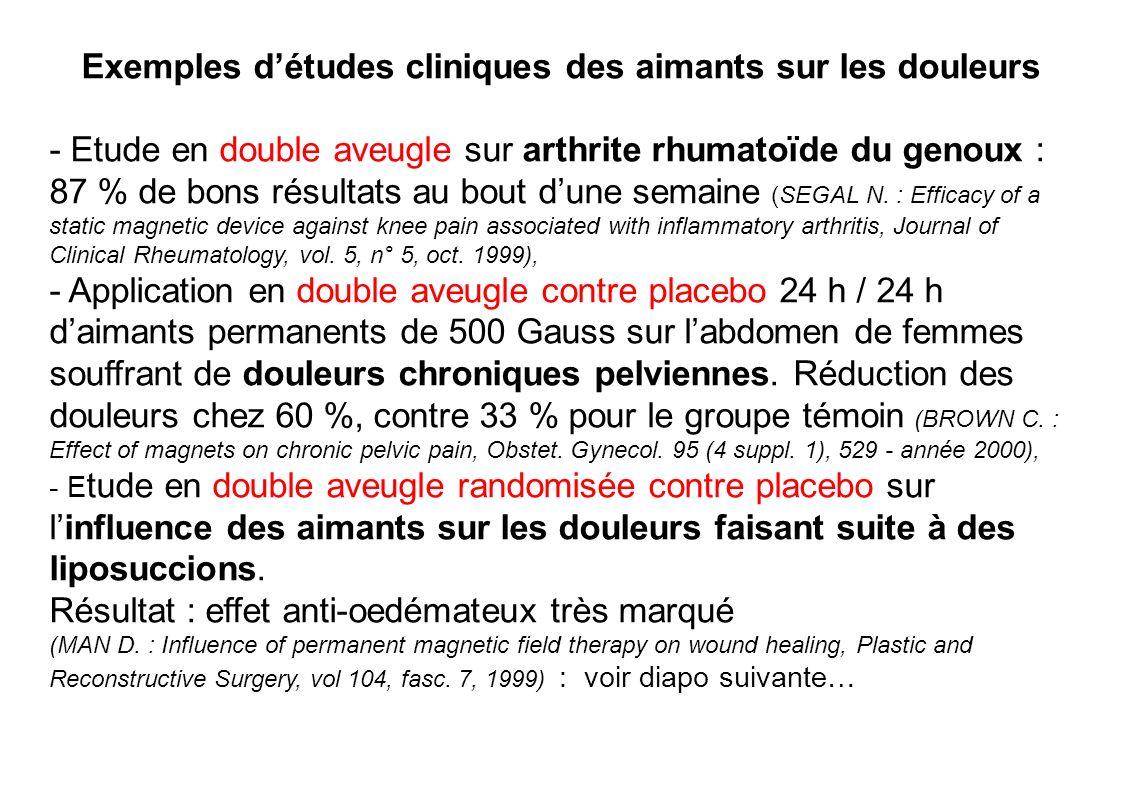 Exemples détudes cliniques des aimants sur les douleurs - Etude en double aveugle sur arthrite rhumatoïde du genoux : 87 % de bons résultats au bout d