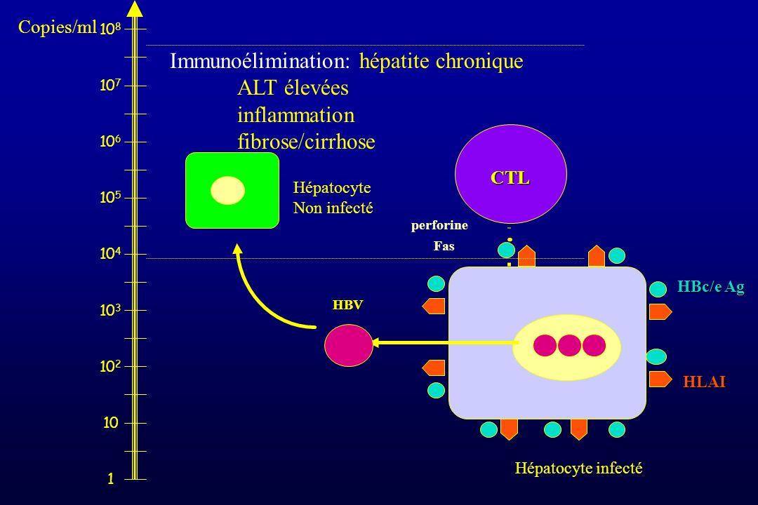 HBV CTL Fas perforine HBc/e Ag HLAI Hépatocyte infecté Hépatocyte Non infecté 1 10 10 2 10 3 10 4 10 5 10 6 10 7 10 8 Immunoélimination: hépatite chro