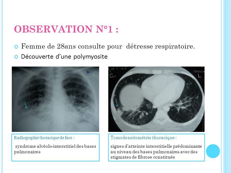 OBSERVATION N°1 : Femme de 28ans consulte pour détresse respiratoire. Découverte dune polymyosite Radiographie thoracique de face : syndrome alvéolo-i