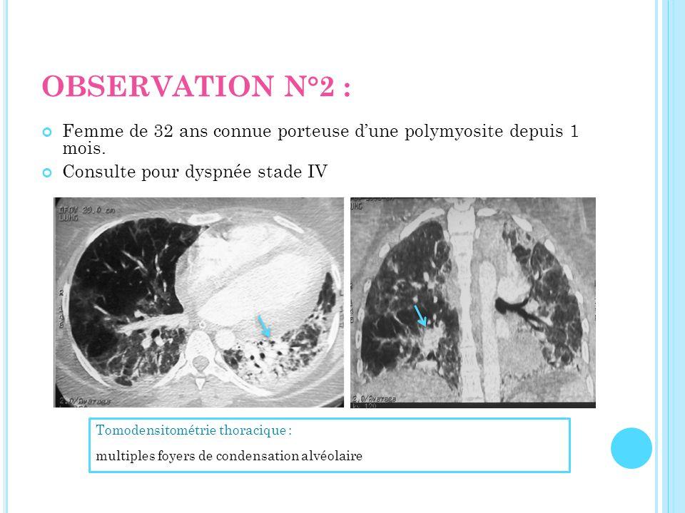 OBSERVATION N°2 : Femme de 32 ans connue porteuse dune polymyosite depuis 1 mois. Consulte pour dyspnée stade IV Tomodensitométrie thoracique : multip