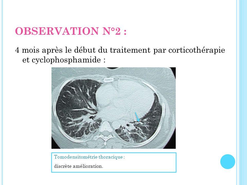 OBSERVATION N°2 : 4 mois après le début du traitement par corticothérapie et cyclophosphamide : Tomodensitométrie thoracique : discrète amélioration.