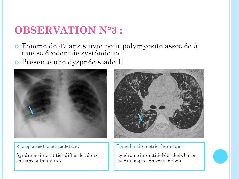 OBSERVATION N°3 : Femme de 47 ans suivie pour polymyosite associée à une sclérodermie systémique Présente une dyspnée stade II Tomodensitométrie thora