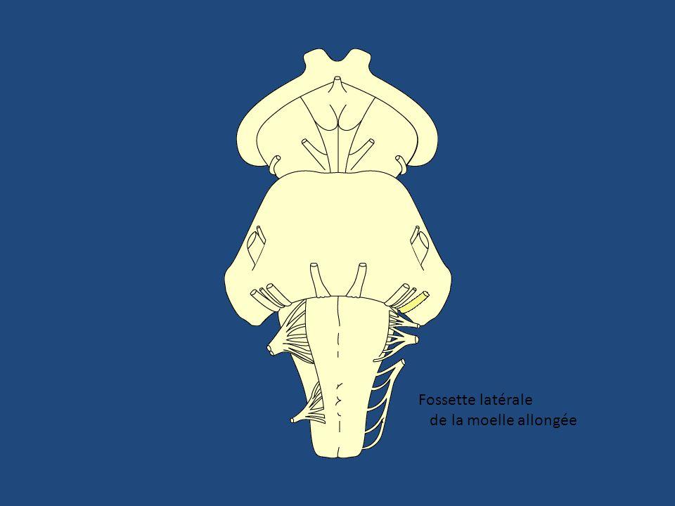 Gaine durale A. labyrinthique VIII vestibulaire VIII cochléaire VII bis VII Gaine arachnoïdienne Gaine piale Méat acoustique interne. Coupe transversa