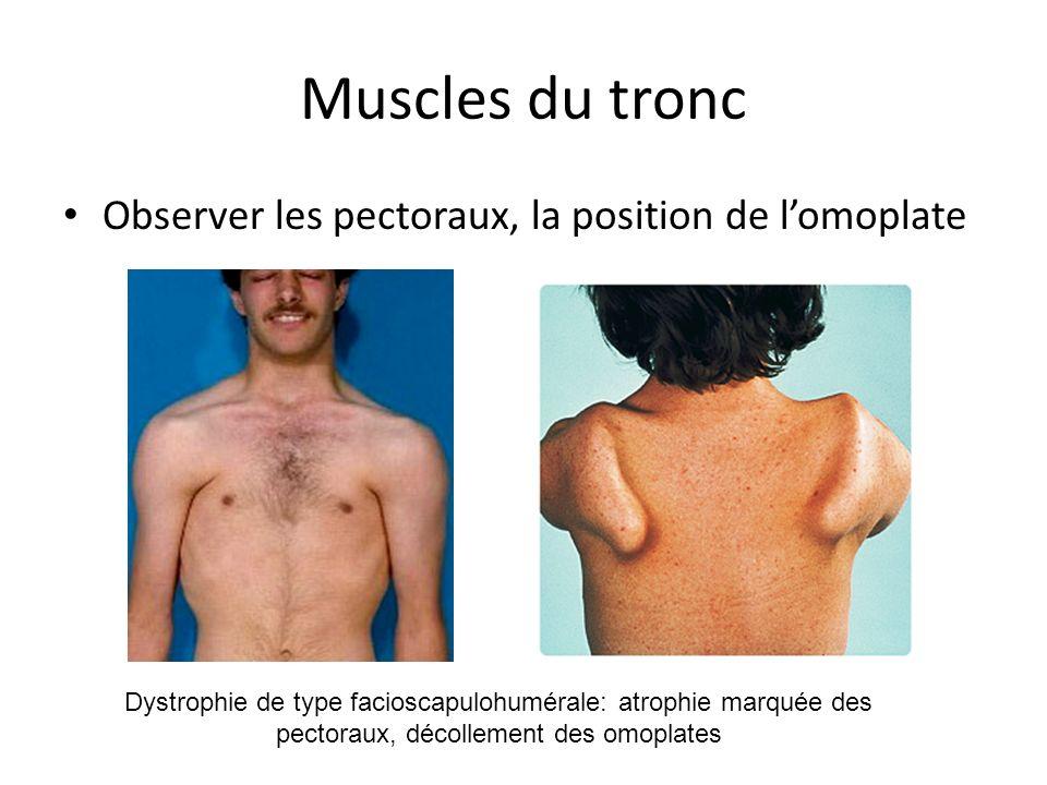 Muscles du tronc Observer les pectoraux, la position de lomoplate Dystrophie de type facioscapulohumérale: atrophie marquée des pectoraux, décollement des omoplates