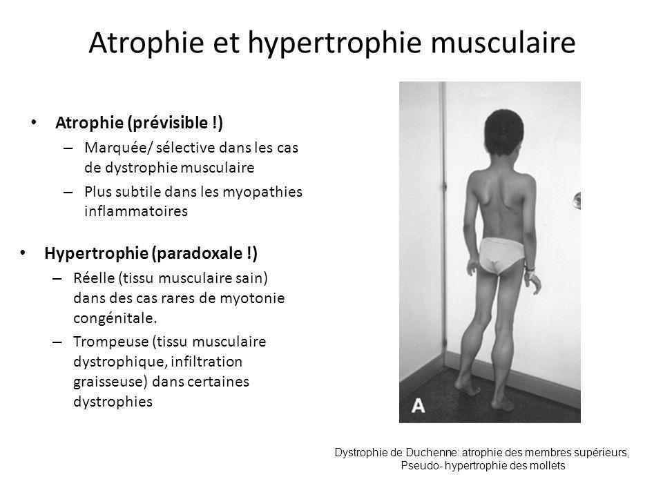 Atrophie et hypertrophie musculaire Atrophie (prévisible !) – Marquée/ sélective dans les cas de dystrophie musculaire – Plus subtile dans les myopathies inflammatoires Hypertrophie (paradoxale !) – Réelle (tissu musculaire sain) dans des cas rares de myotonie congénitale.