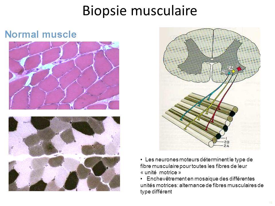 Biopsie musculaire 15 Les neurones moteurs déterminent le type de fibre musculaire pour toutes les fibres de leur « unité motrice » Enchevêtrement en mosaique des différentes unités motrices: alternance de fibres musculaires de type différent