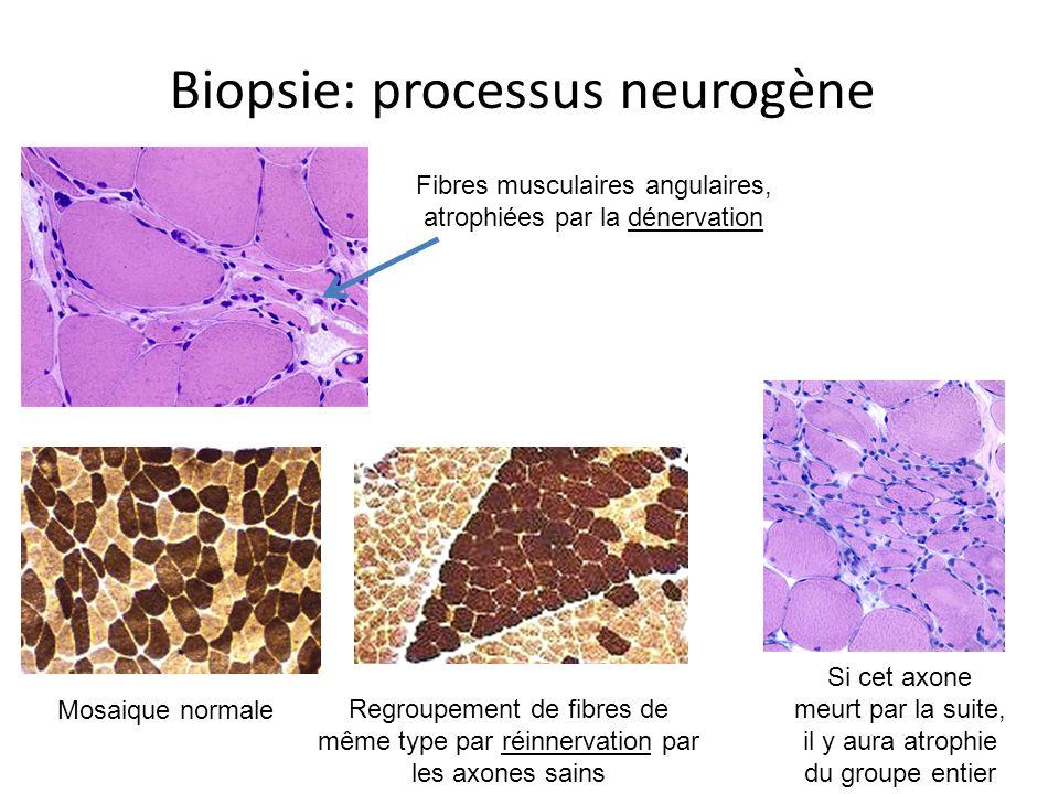 Biopsie: processus neurogène Fibres musculaires angulaires, atrophiées par la dénervation Mosaique normale Regroupement de fibres de même type par réinnervation par les axones sains Si cet axone meurt par la suite, il y aura atrophie du groupe entier