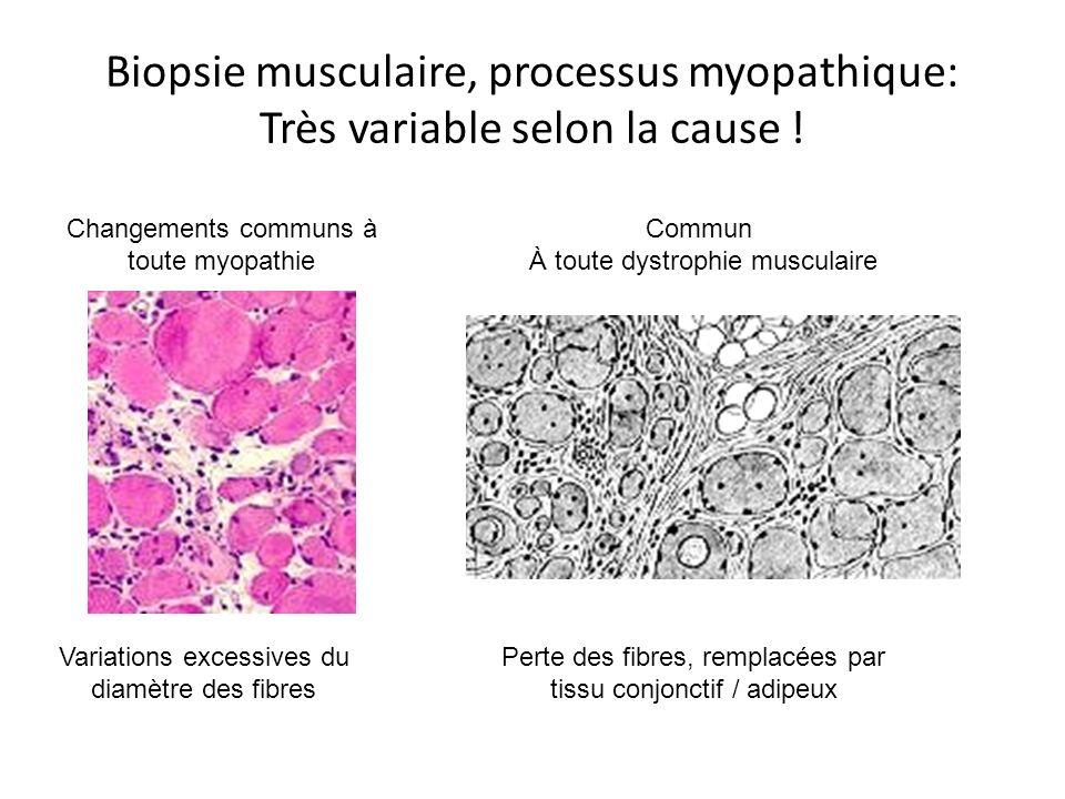 Biopsie musculaire, processus myopathique: Très variable selon la cause .