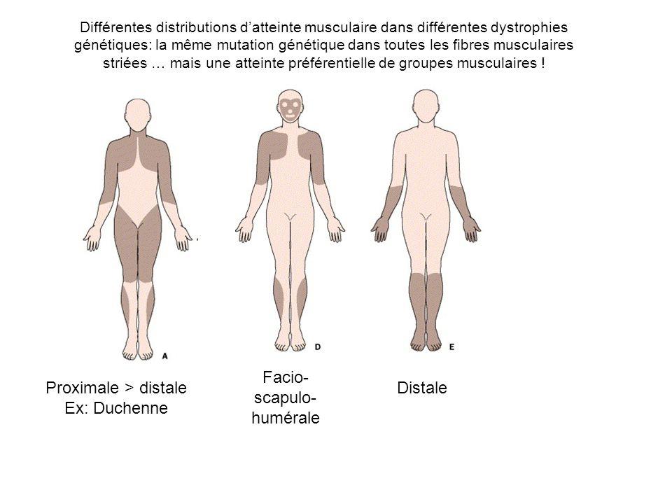 Différentes distributions datteinte musculaire dans différentes dystrophies génétiques: la même mutation génétique dans toutes les fibres musculaires striées … mais une atteinte préférentielle de groupes musculaires .