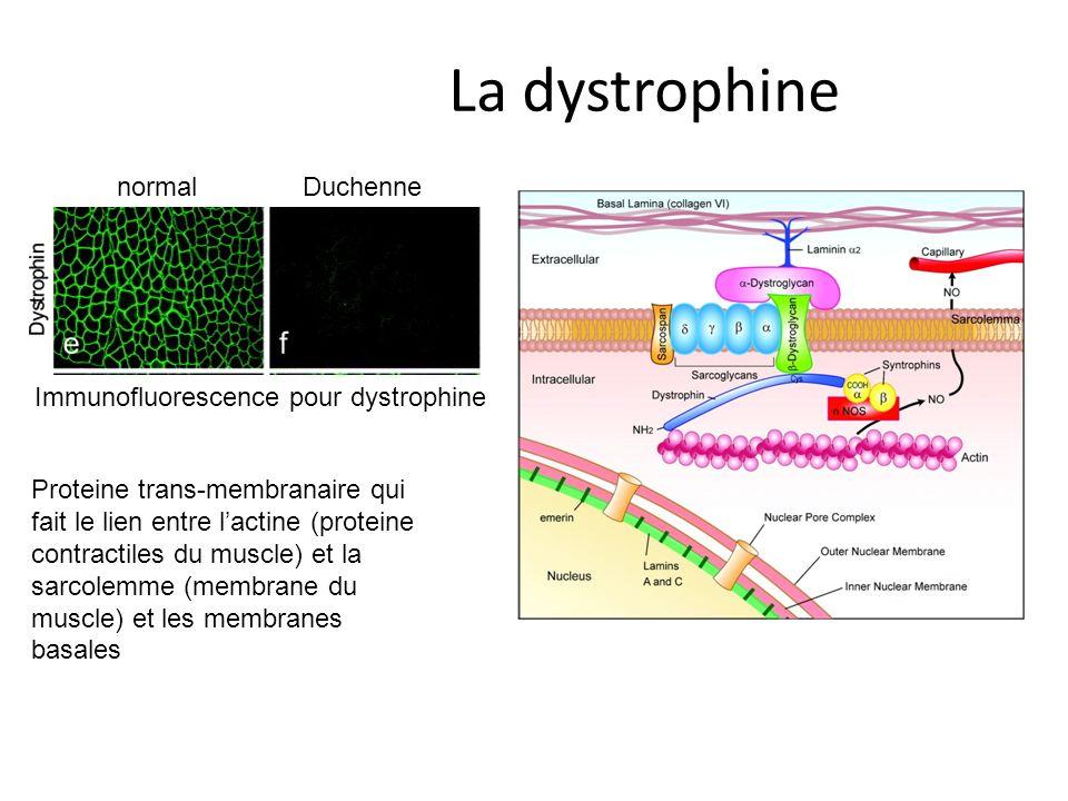 La dystrophine Immunofluorescence pour dystrophine normalDuchenne Proteine trans-membranaire qui fait le lien entre lactine (proteine contractiles du muscle) et la sarcolemme (membrane du muscle) et les membranes basales