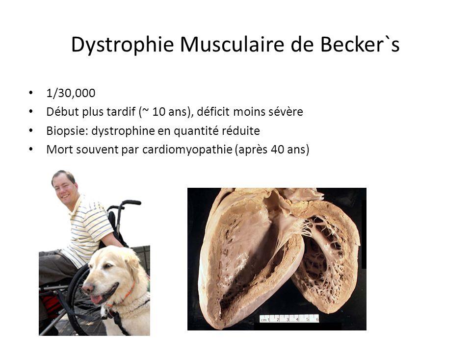 Dystrophie Musculaire de Becker`s 1/30,000 Début plus tardif (~ 10 ans), déficit moins sévère Biopsie: dystrophine en quantité réduite Mort souvent par cardiomyopathie (après 40 ans)