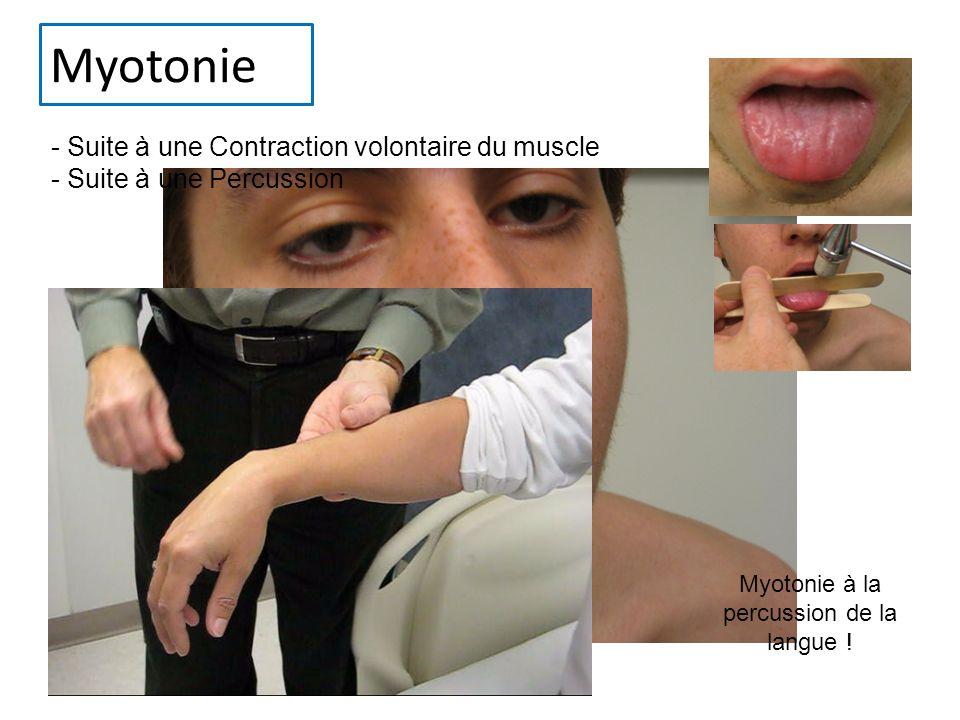 Myotonie - Suite à une Contraction volontaire du muscle - Suite à une Percussion Myotonie à la percussion de la langue !