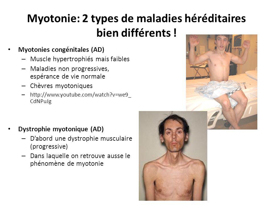 Myotonie: 2 types de maladies héréditaires bien différents .