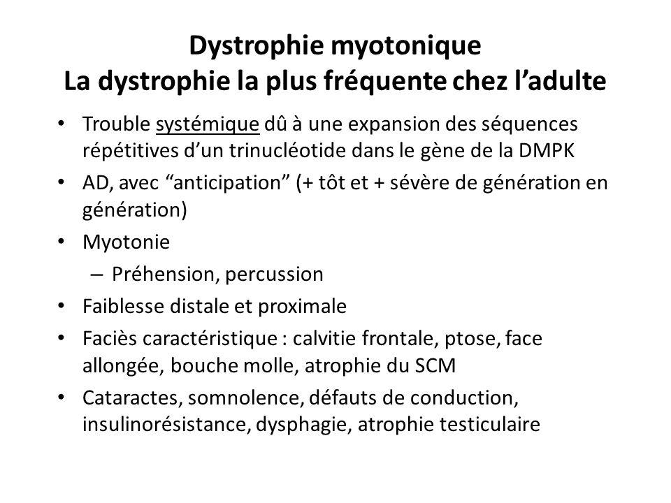 Dystrophie myotonique La dystrophie la plus fréquente chez ladulte Trouble systémique dû à une expansion des séquences répétitives dun trinucléotide dans le gène de la DMPK AD, avec anticipation (+ tôt et + sévère de génération en génération) Myotonie – Préhension, percussion Faiblesse distale et proximale Faciès caractéristique : calvitie frontale, ptose, face allongée, bouche molle, atrophie du SCM Cataractes, somnolence, défauts de conduction, insulinorésistance, dysphagie, atrophie testiculaire