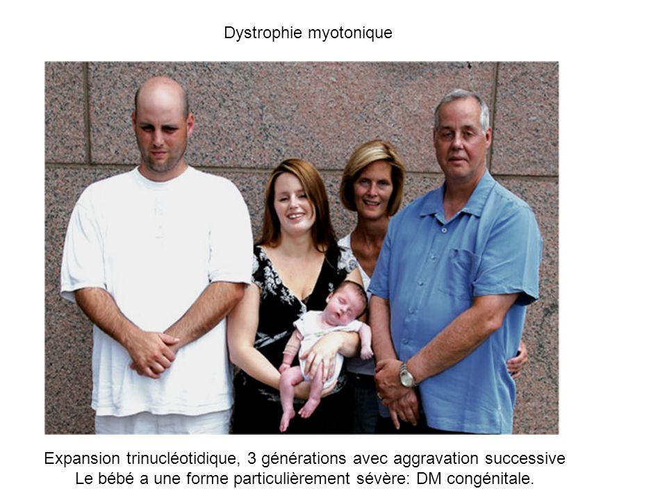 Expansion trinucléotidique, 3 générations avec aggravation successive Le bébé a une forme particulièrement sévère: DM congénitale.