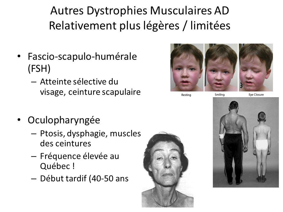 Autres Dystrophies Musculaires AD Relativement plus légères / limitées Fascio-scapulo-humérale (FSH) – Atteinte sélective du visage, ceinture scapulaire Oculopharyngée – Ptosis, dysphagie, muscles des ceintures – Fréquence élevée au Québec .