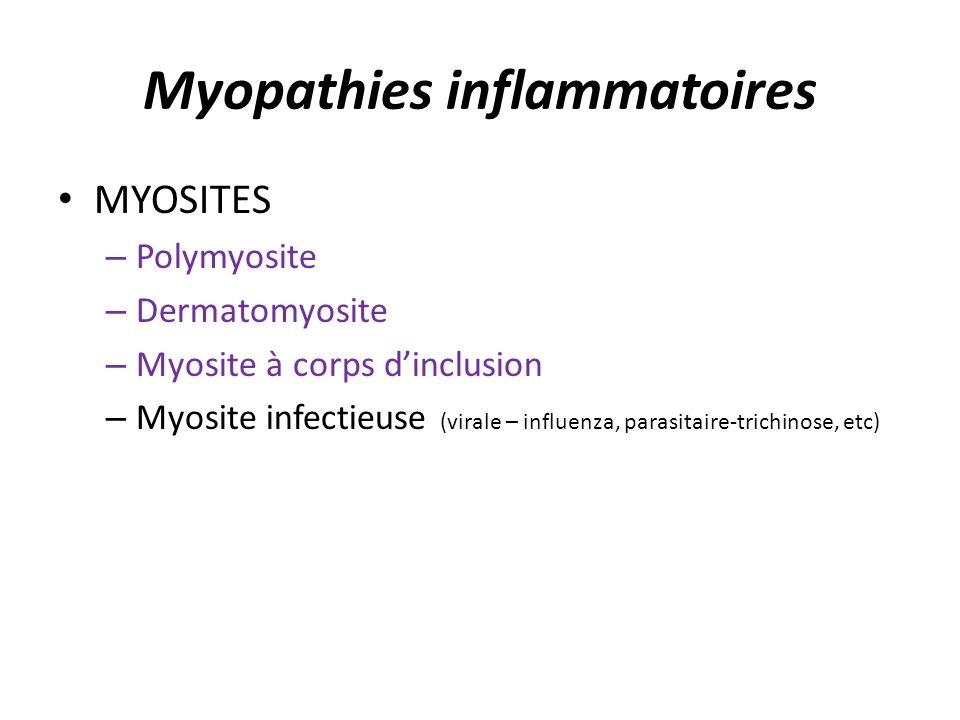 Myopathies inflammatoires MYOSITES – Polymyosite – Dermatomyosite – Myosite à corps dinclusion – Myosite infectieuse (virale – influenza, parasitaire-trichinose, etc)