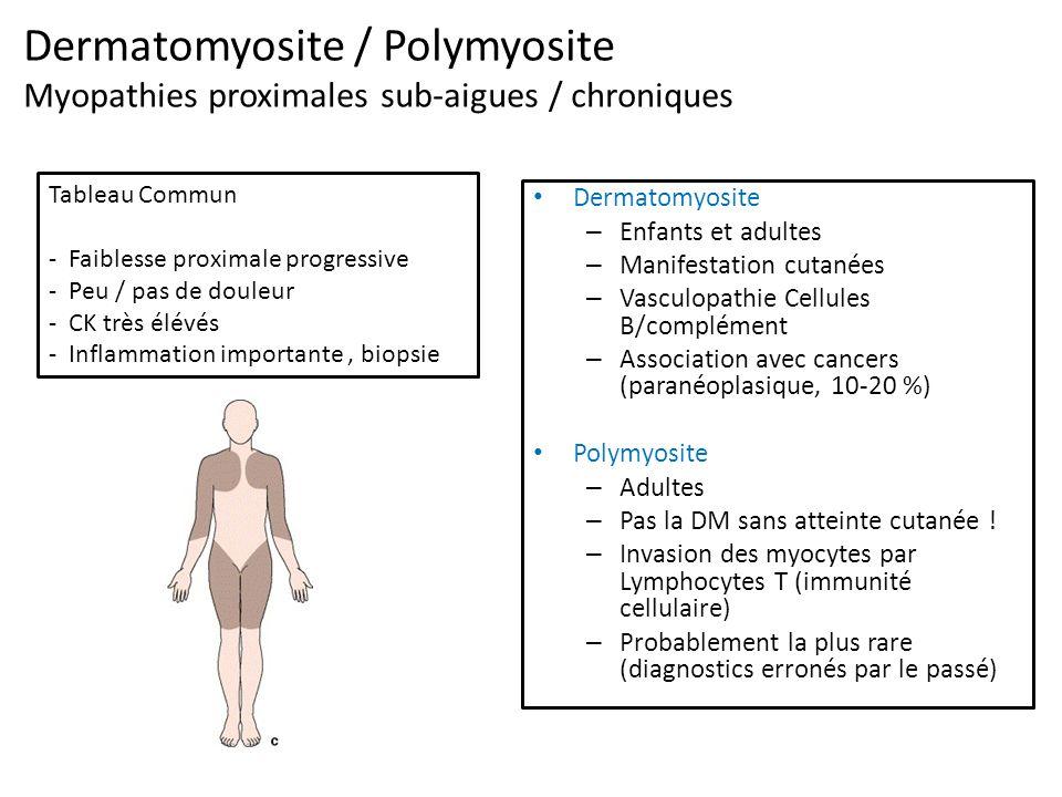 Dermatomyosite / Polymyosite Myopathies proximales sub-aigues / chroniques Dermatomyosite – Enfants et adultes – Manifestation cutanées – Vasculopathie Cellules B/complément – Association avec cancers (paranéoplasique, 10-20 %) Polymyosite – Adultes – Pas la DM sans atteinte cutanée .