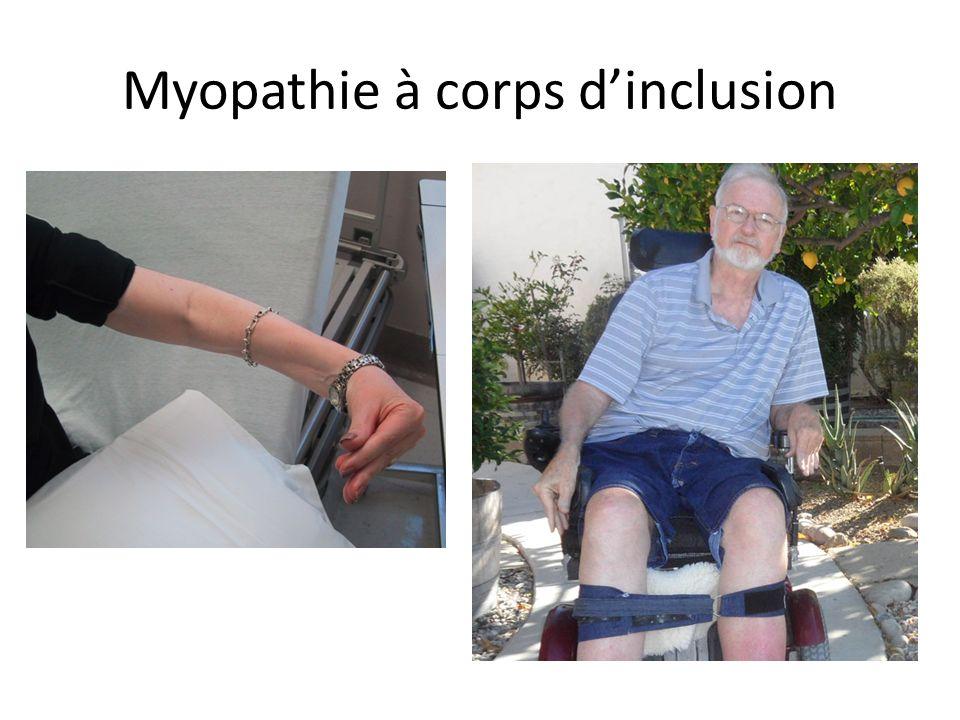 Myopathie à corps dinclusion