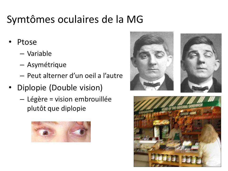 Symtômes oculaires de la MG Ptose – Variable – Asymétrique – Peut alterner dun oeil a lautre Diplopie (Double vision) – Légère = vision embrouillée plutôt que diplopie