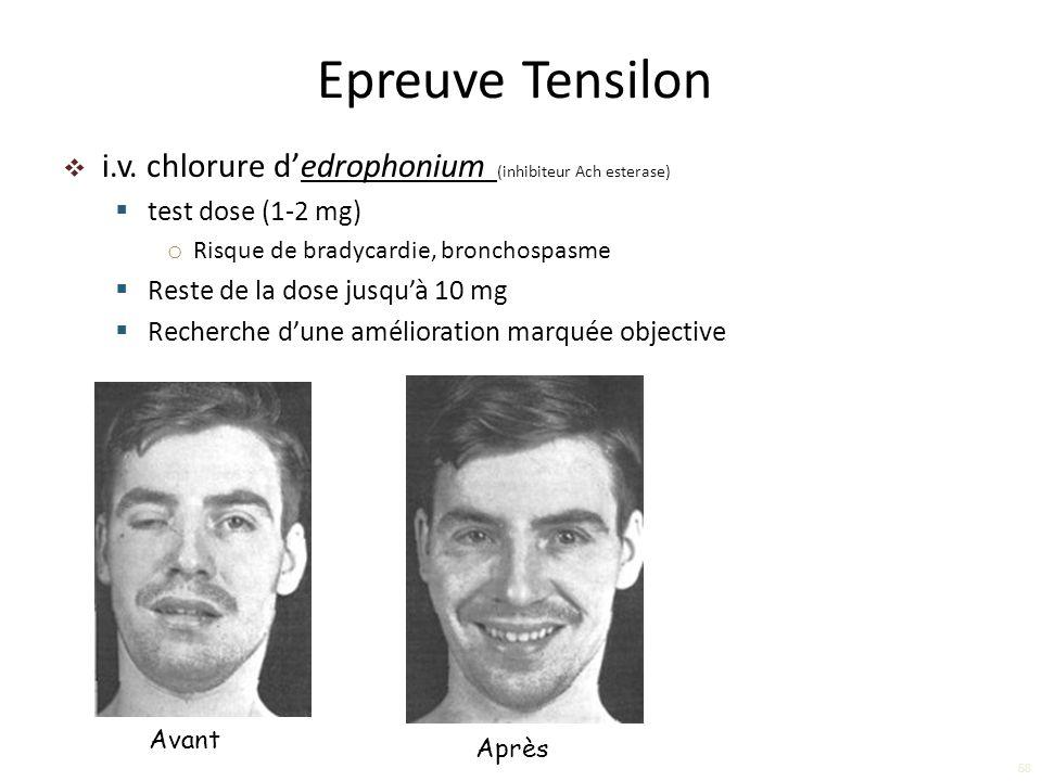 i.v. chlorure dedrophonium (inhibiteur Ach esterase) test dose (1-2 mg) o Risque de bradycardie, bronchospasme Reste de la dose jusquà 10 mg Recherche