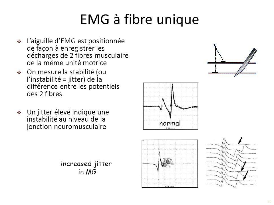 Laiguille dEMG est positionnée de façon à enregistrer les décharges de 2 fibres musculaire de la même unité motrice On mesure la stabilité (ou linstabilité = jitter) de la différence entre les potentiels des 2 fibres Un jitter élevé indique une instabilité au niveau de la jonction neuromusculaire EMG à fibre unique normal increased jitter in MG 60