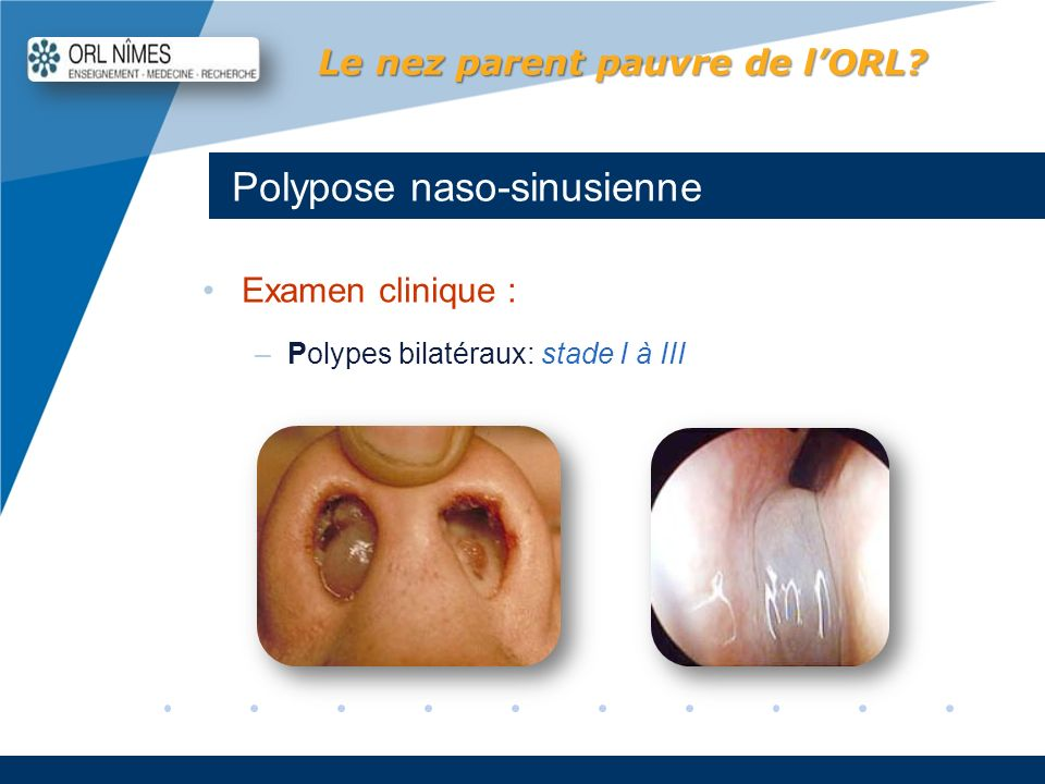 Company LOGO www.company.com Polypose naso-sinusienne Le nez parent pauvre de lORL? Examen clinique : –Polypes bilatéraux: stade I à III