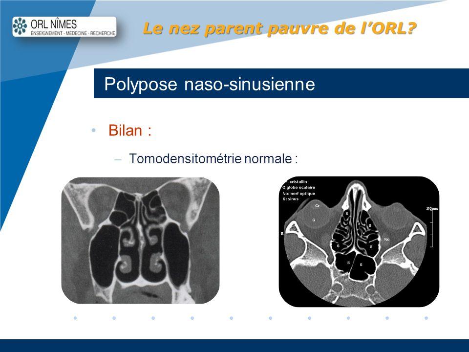 Company LOGO www.company.com Polypose naso-sinusienne Le nez parent pauvre de lORL? Bilan : –Tomodensitométrie normale :