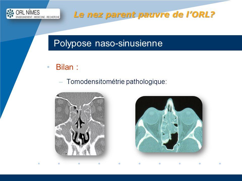 Company LOGO www.company.com Polypose naso-sinusienne Le nez parent pauvre de lORL? Bilan : –Tomodensitométrie pathologique: