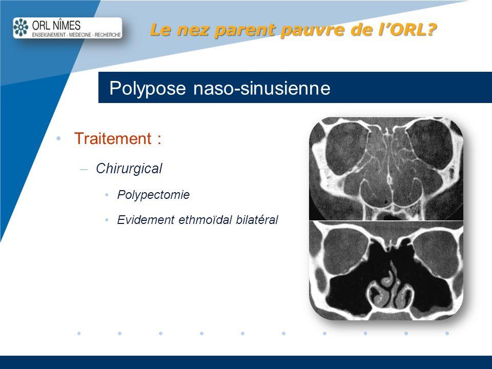 Company LOGO www.company.com Polypose naso-sinusienne Le nez parent pauvre de lORL? Traitement : –Chirurgical Polypectomie Evidement ethmoïdal bilatér