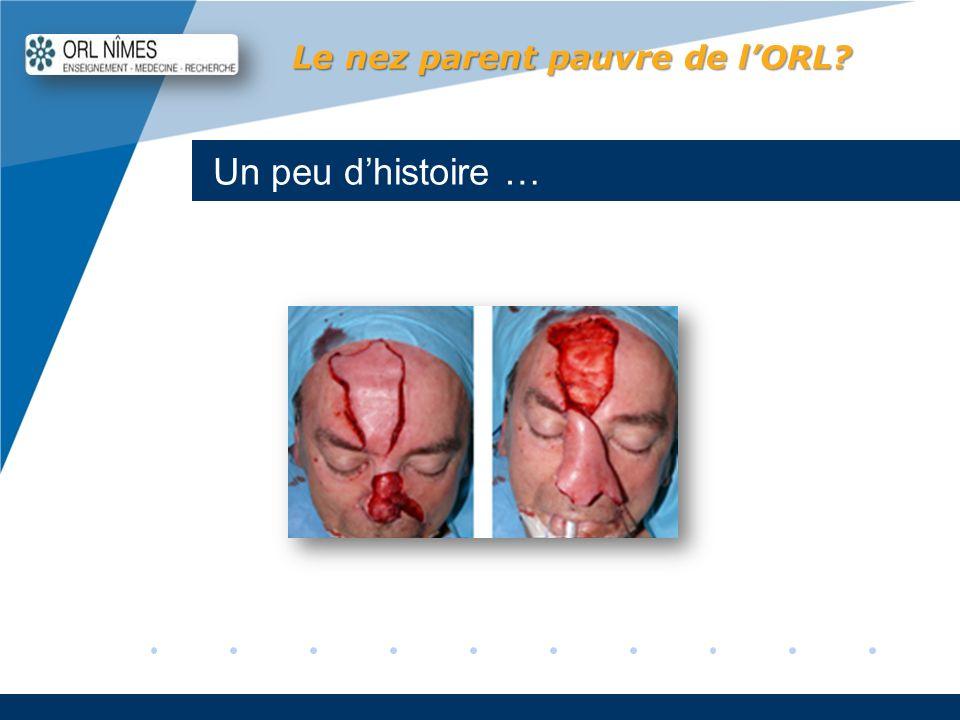 Company LOGO www.company.com Un peu dhistoire … Le nez parent pauvre de lORL?
