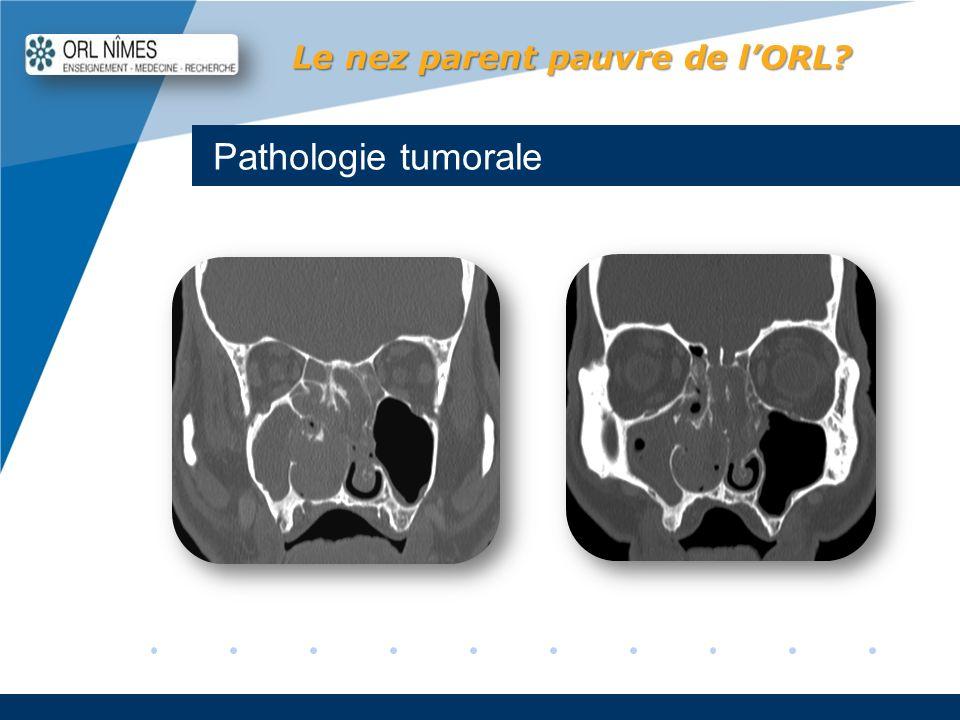 Company LOGO www.company.com Pathologie tumorale Le nez parent pauvre de lORL?