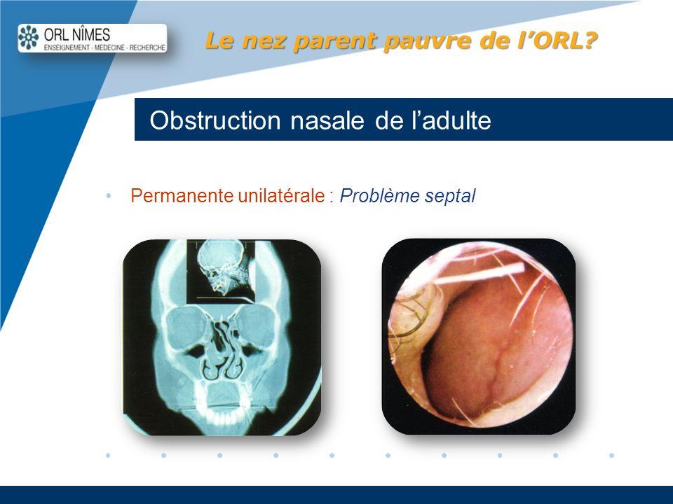 Company LOGO www.company.com Obstruction nasale de ladulte Le nez parent pauvre de lORL? Permanente unilatérale : Problème septal