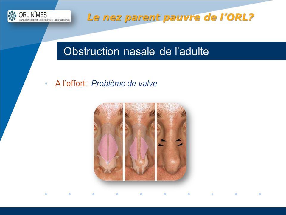 Company LOGO www.company.com Obstruction nasale de ladulte Le nez parent pauvre de lORL? A leffort : Problème de valve
