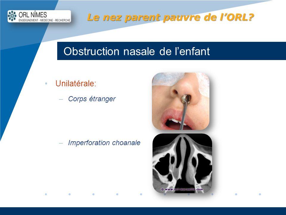 Company LOGO www.company.com Obstruction nasale de lenfant Le nez parent pauvre de lORL? Unilatérale: –Corps étranger –Imperforation choanale