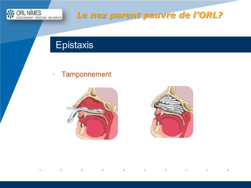 Company LOGO www.company.com Epistaxis Le nez parent pauvre de lORL? Tamponnement