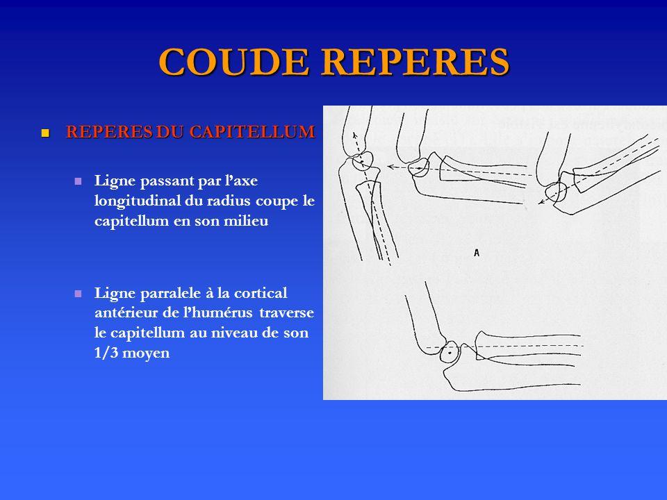 COUDE REPERES REPERES DU CAPITELLUM REPERES DU CAPITELLUM Ligne passant par laxe longitudinal du radius coupe le capitellum en son milieu Ligne parralele à la cortical antérieur de lhumérus traverse le capitellum au niveau de son 1/3 moyen
