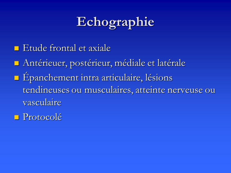 Echographie Etude frontal et axiale Etude frontal et axiale Antérieuer, postérieur, médiale et latérale Antérieuer, postérieur, médiale et latérale Épanchement intra articulaire, lésions tendineuses ou musculaires, atteinte nerveuse ou vasculaire Épanchement intra articulaire, lésions tendineuses ou musculaires, atteinte nerveuse ou vasculaire Protocolé Protocolé