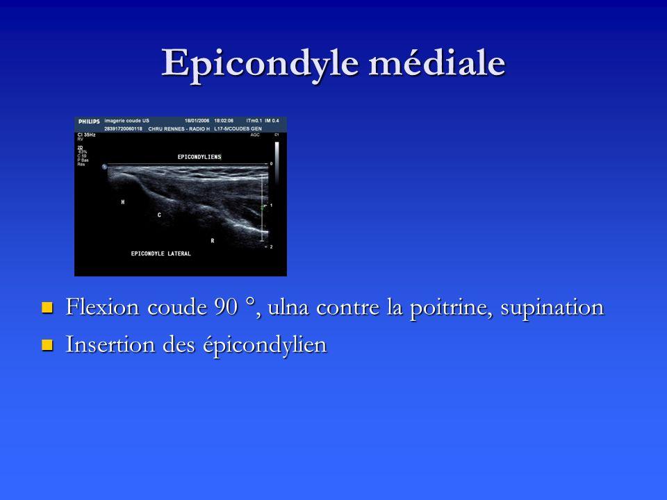 Epicondyle médiale Flexion coude 90 °, ulna contre la poitrine, supination Insertion des épicondylien