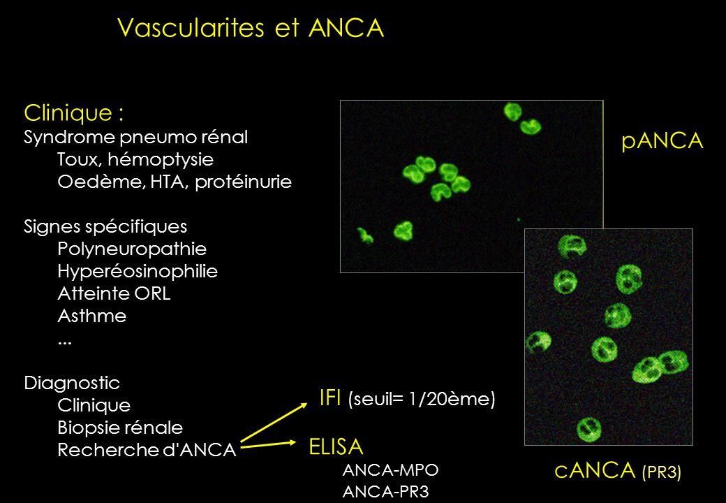 Ensellement de la base du nez Sinusite chroniqueNodules pulmonaires multiples Purpura http://www.images.cri-net.com/ Urgence diagnostique un mot de cl