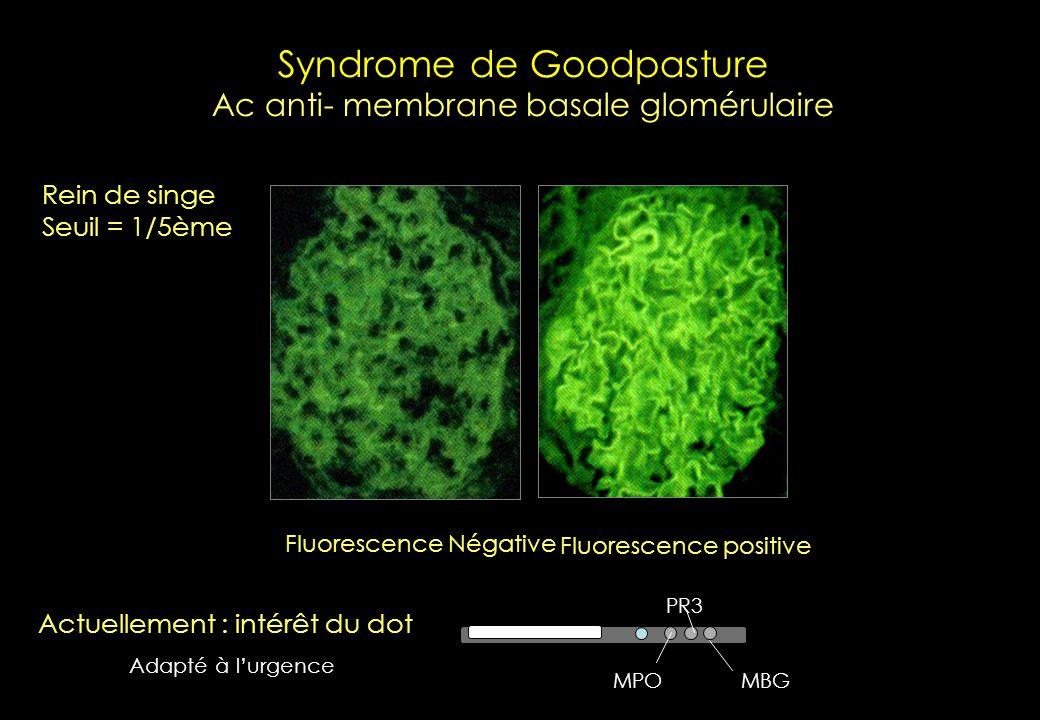 Sylvain Dubucquoi CHRU de Lille – 2009- laboratoire dImmunologie pANCA (MPO, différents de MPO) xANCA (NANA) ANA Intérêt des autres substrats ? (Pas d