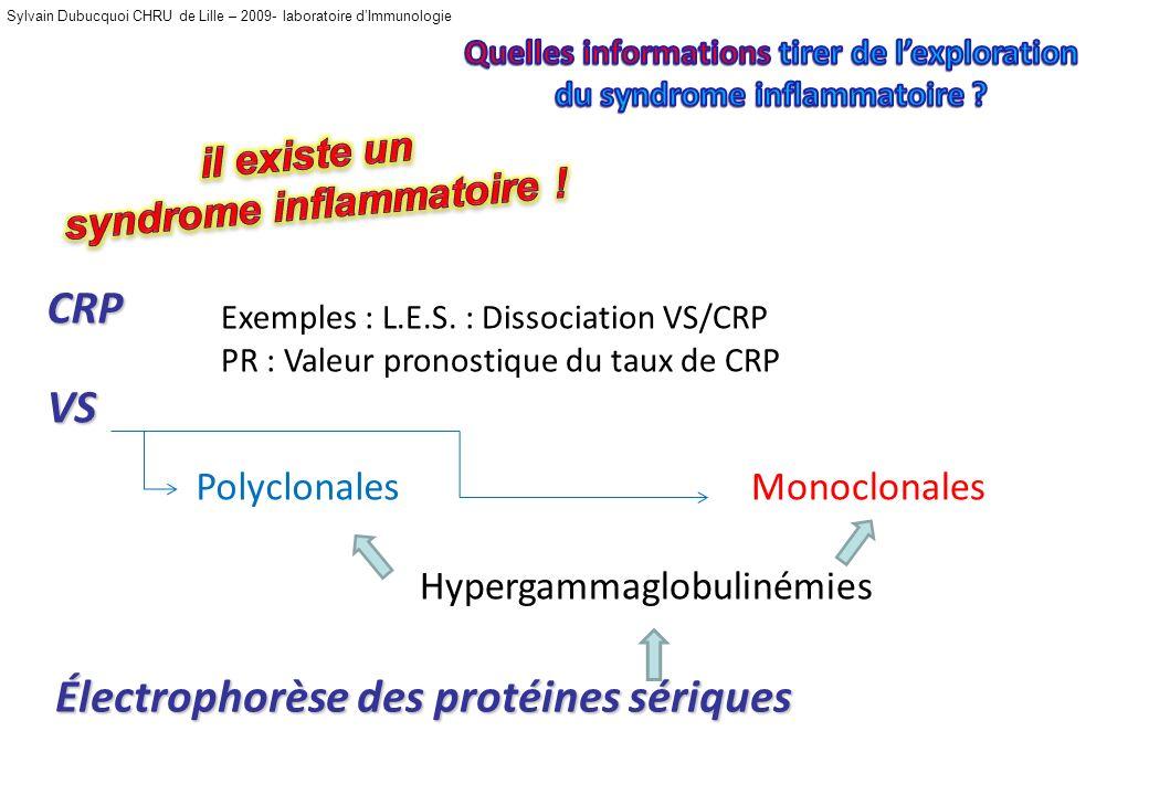 Sylvain Dubucquoi CHRU de Lille – 2009- laboratoire dImmunologie CRP VS Électrophorèse des protéines sériques Exemples : L.E.S.