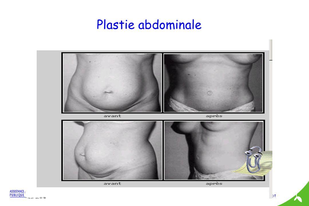 ML Pibarot Plastie abdominale