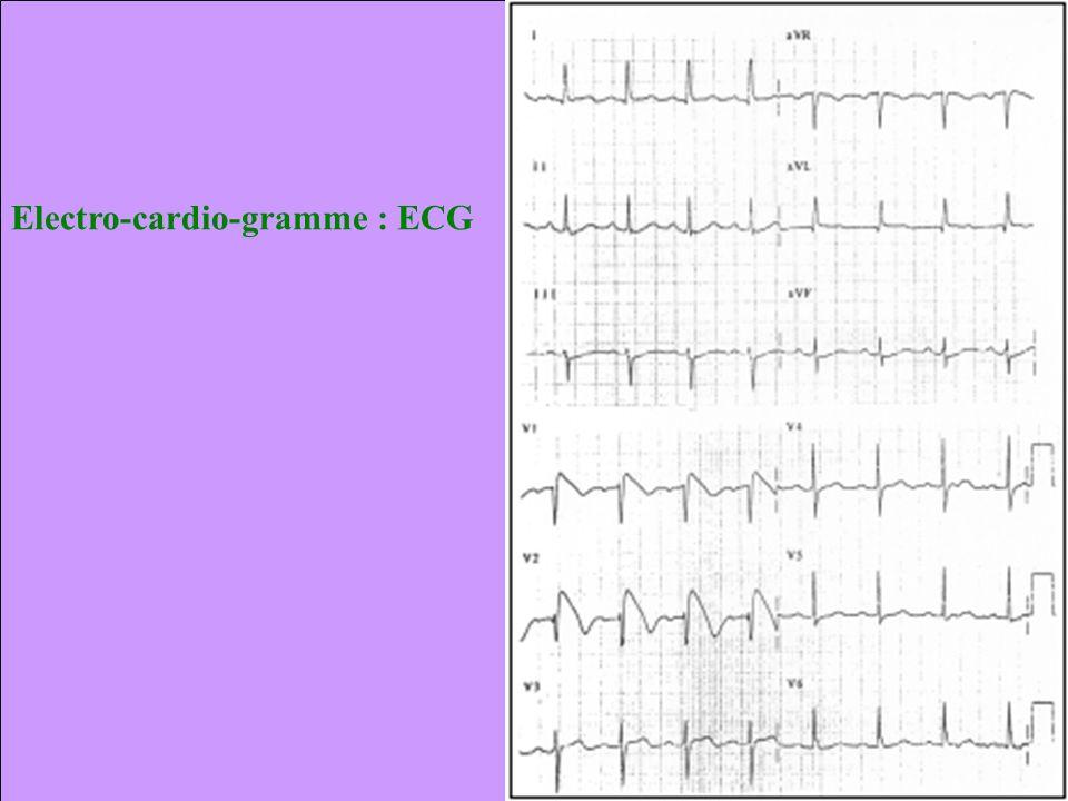Electro-cardio-gramme : ECG
