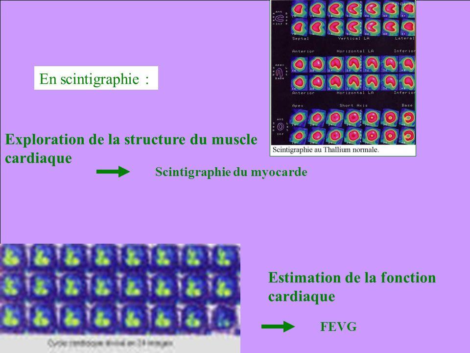 En scintigraphie : Exploration de la structure du muscle cardiaque Estimation de la fonction cardiaque FEVG Scintigraphie du myocarde