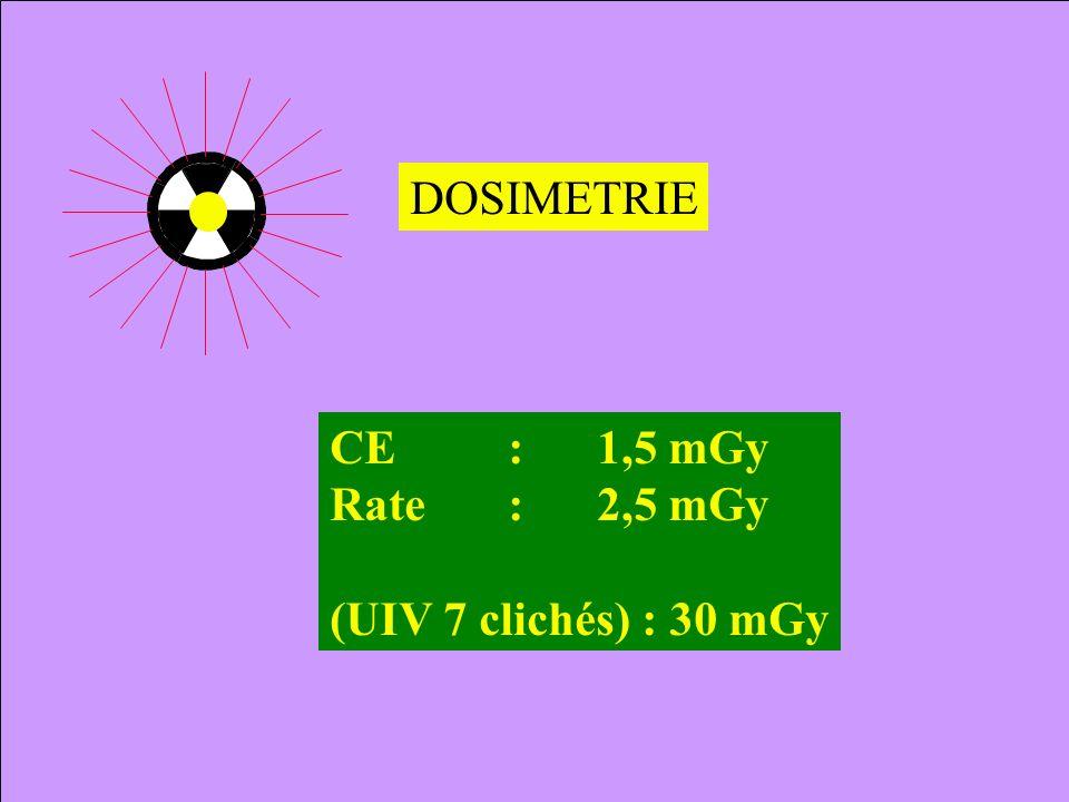 DOSIMETRIE CE : 1,5 mGy Rate : 2,5 mGy (UIV 7 clichés) : 30 mGy