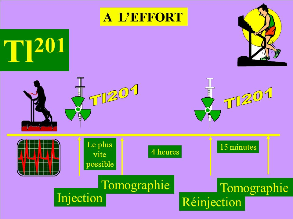 A LEFFORT Tl 201 Injection 4 heures Réinjection Tomographie Le plus vite possible Tomographie 15 minutes